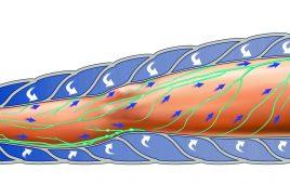 Máy nén ép trị liệu suy giãn tĩnh mạch