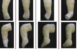 Điều trị bàn chân khoèo bằng phương pháp Ponseti