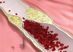 – Biến chứng mạch máu do đái tháo đường
