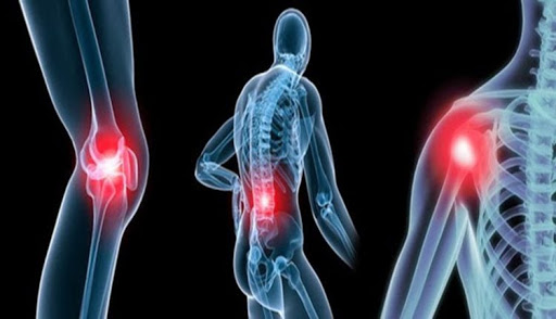 Hội chứng loãn dưỡng thần kinh- đau nhức xương khớp- tê buốt tay chân -