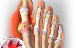 Bệnh Gout (gút)